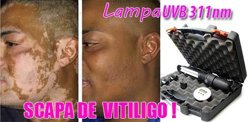 lampa vitiligo 1