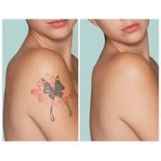 Ştergerea tatuajelor cu laserul