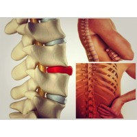 Hernia de disc lombară