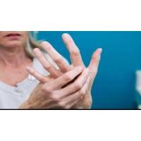 Scleroza multipla si tulburarile de mobilitate