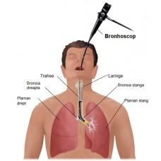 Depistarea cancerului pulmonar