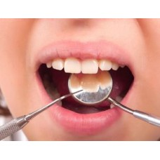 Plombele dentare